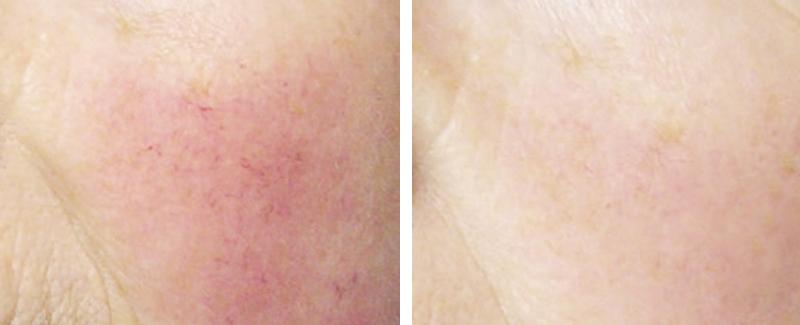 twotec-diffuse-roetungen-behandlung